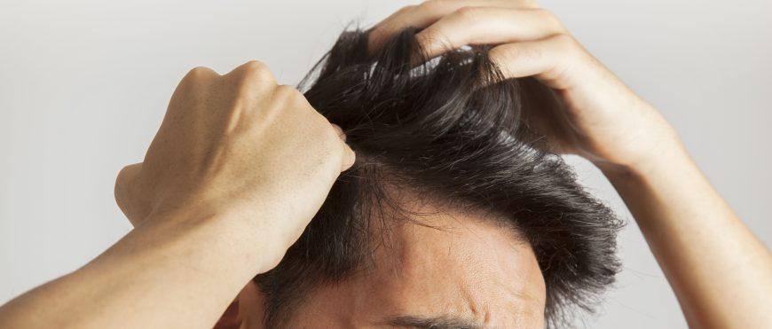 ¿Debería preocuparte la caída de pelo durante el otoño?